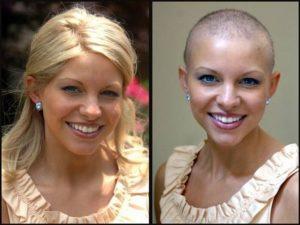 Девушка до и после химиотерапии