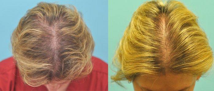 Фото женщины с выпадением волос